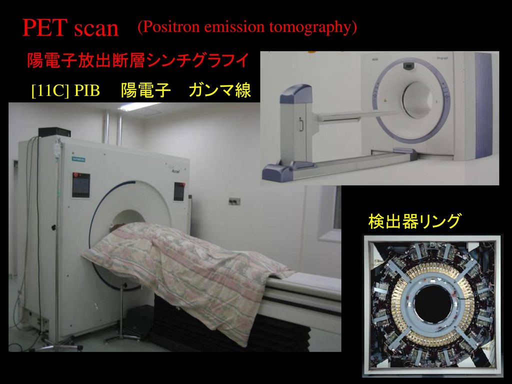 PET scan (Positron emission tomography) 陽電子放出断層シンチグラフイ [11C] PIB 陽電子
